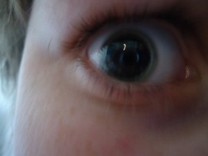 Son's dilated eye after eye doc visit..